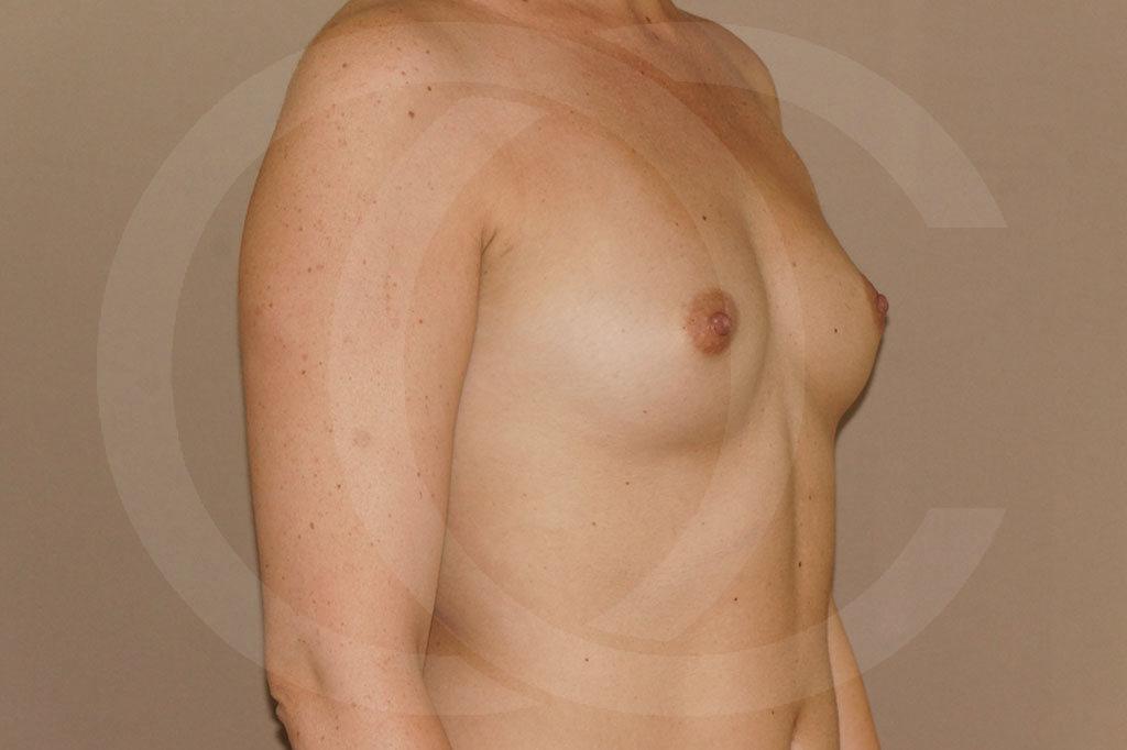Aumento de senos Madrid foto 350cc redondas perfil alto antes 03