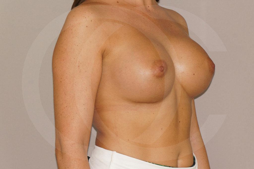 Aumento de senos Madrid foto 350cc redondas perfil alto después 04