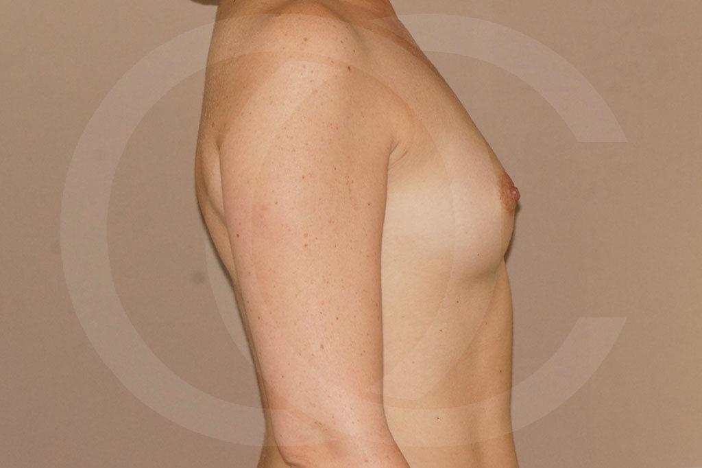 Aumento de senos Madrid foto 350cc redondas perfil alto antes 05