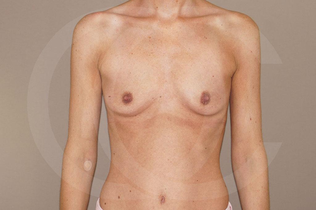 Aumento de senos Madrid foto 375cc anatómicas antes 01