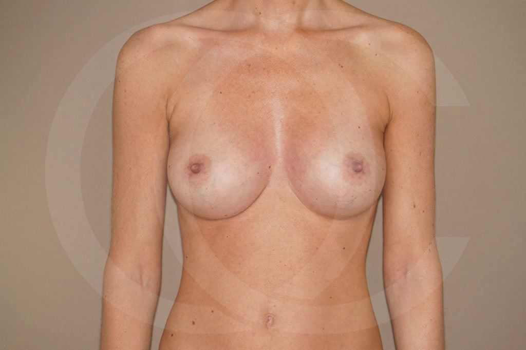Aumento de senos Madrid foto 375cc anatómicas después 02