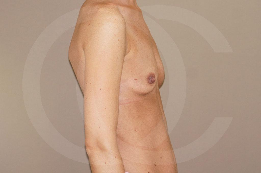 Aumento de senos Madrid foto 375cc anatómicas antes 03