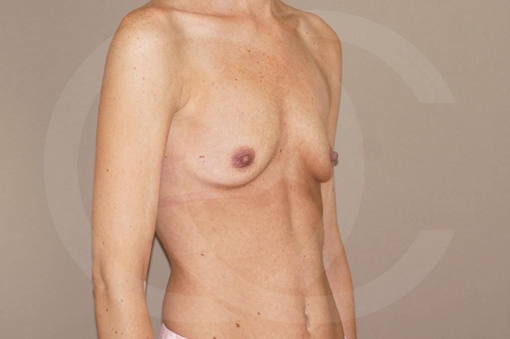 Aumento de senos Madrid foto 375cc anatómicas antes 05