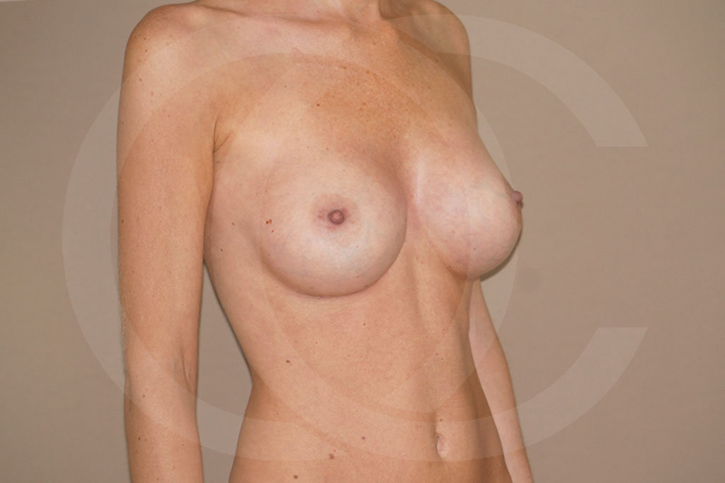 Aumento de senos Madrid foto 375cc anatómicas después 06