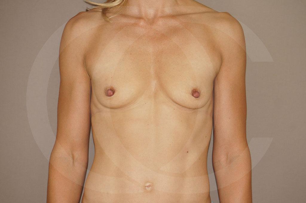 Aumento de senos Madrid foto implantes silicona antes 01