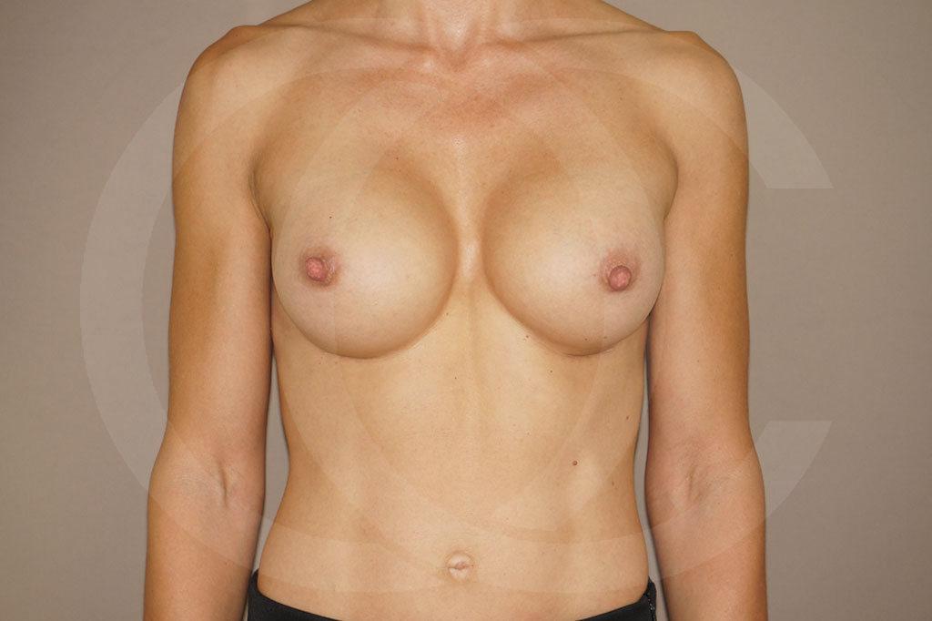 Aumento de senos Madrid foto implantes silicona después 02