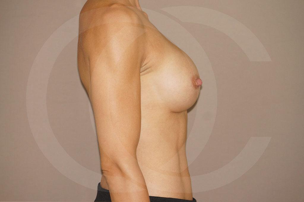 Aumento de senos Madrid foto implantes silicona después 04