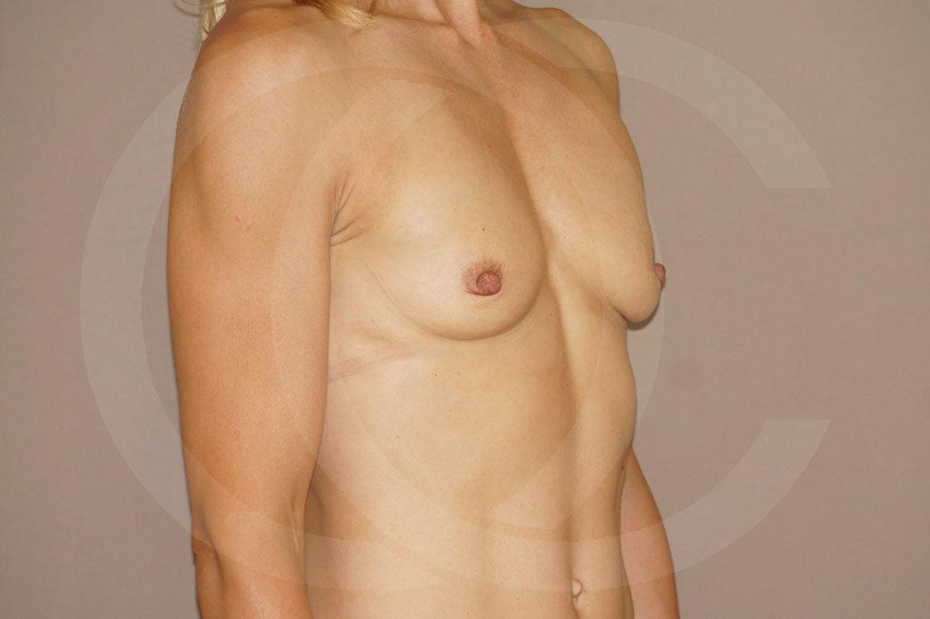 Aumento de senos Madrid foto implantes silicona antes 05