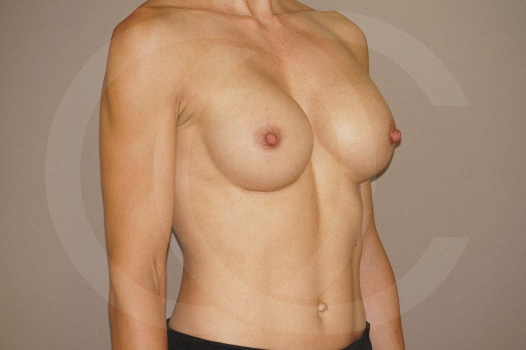 Aumento de senos Madrid foto implantes silicona después 06