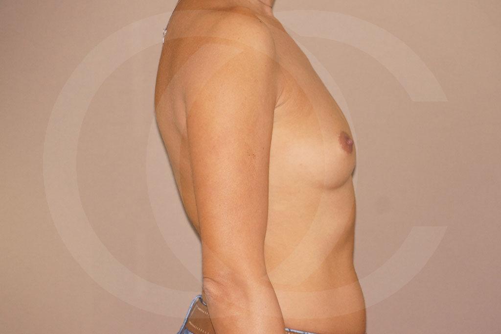 Aumento de senos Madrid foto Implantes silicona antes 03