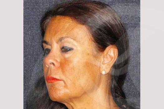 Blefaroplastia Madrid foto Superior e inferior antes 03