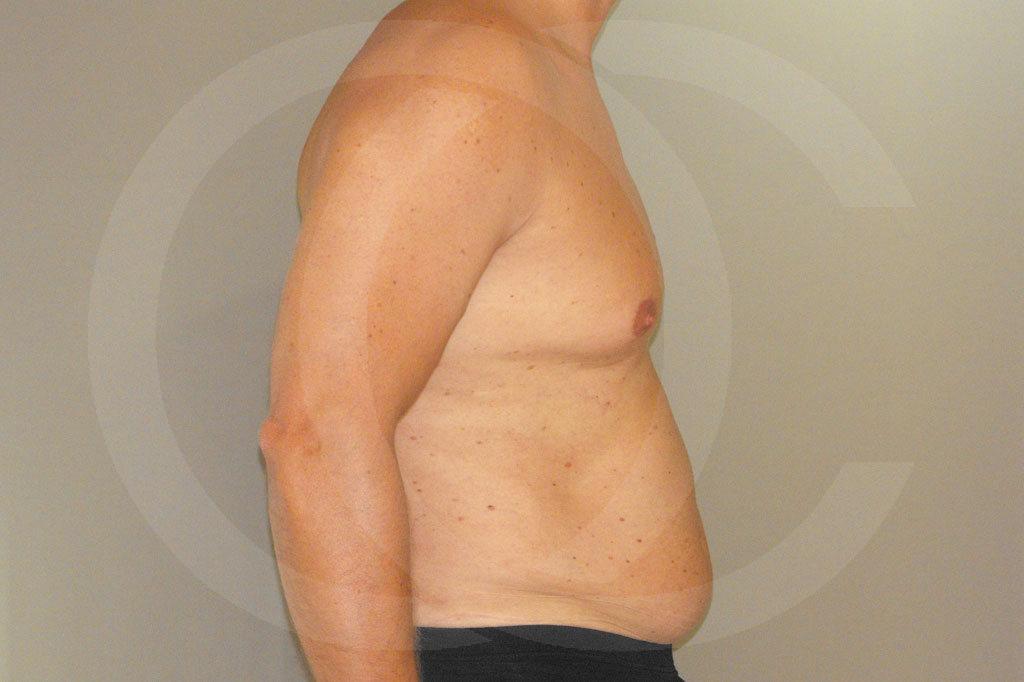 Ginecomastia Madrid foto Contorno del pecho masculino antes 03