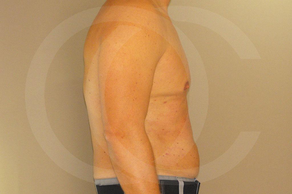 Ginecomastia Madrid foto Contorno del pecho masculino después 04