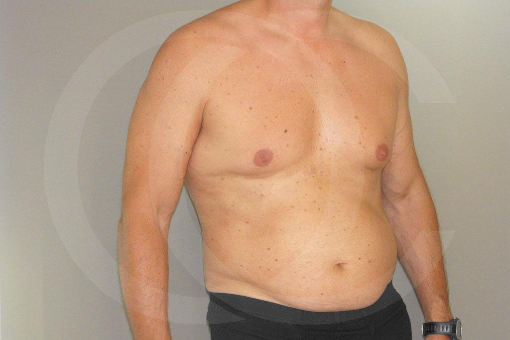 Ginecomastia Madrid foto Contorno del pecho masculino antes 05