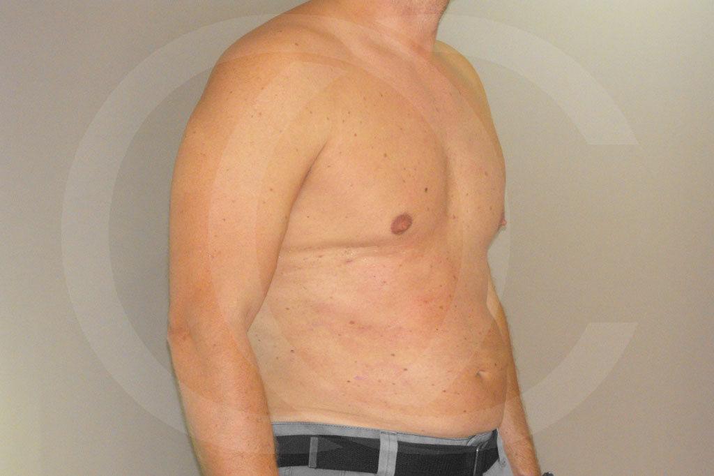 Ginecomastia Madrid foto Contorno del pecho masculino después 06