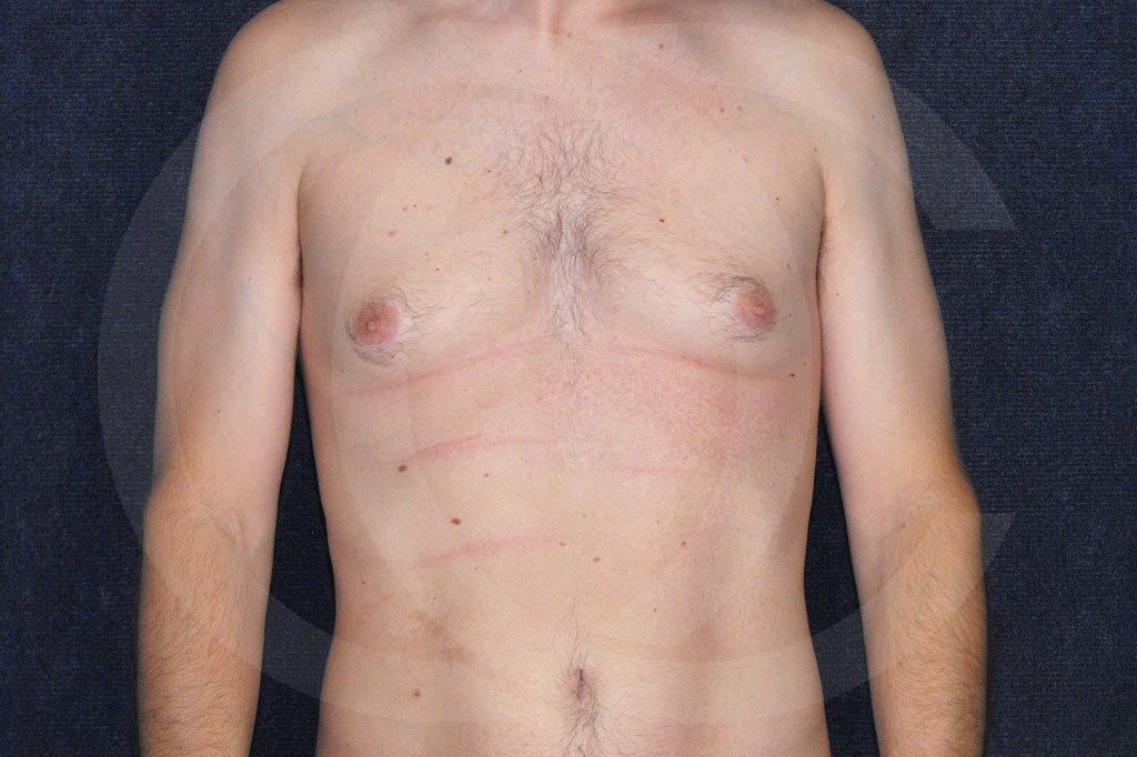Ginecomastia Madrid foto cirugía reducción de senos antes 01