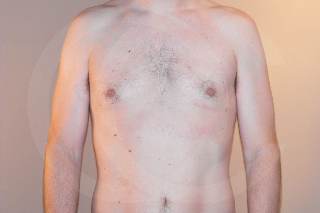 Ginecomastia Madrid foto cirugía reducción de senos después 02