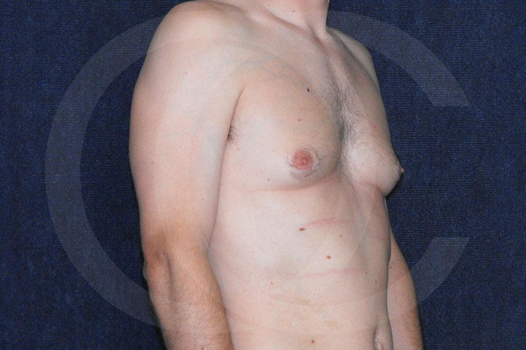 Ginecomastia Madrid foto cirugía reducción de senos antes 03