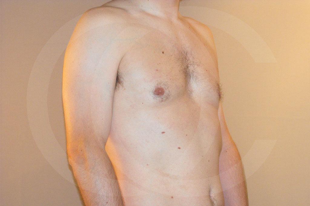Ginecomastia Madrid foto cirugía reducción de senos después 04