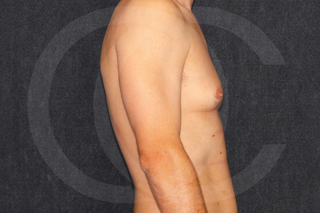 Ginecomastia Madrid foto cirugía reducción de senos antes 05