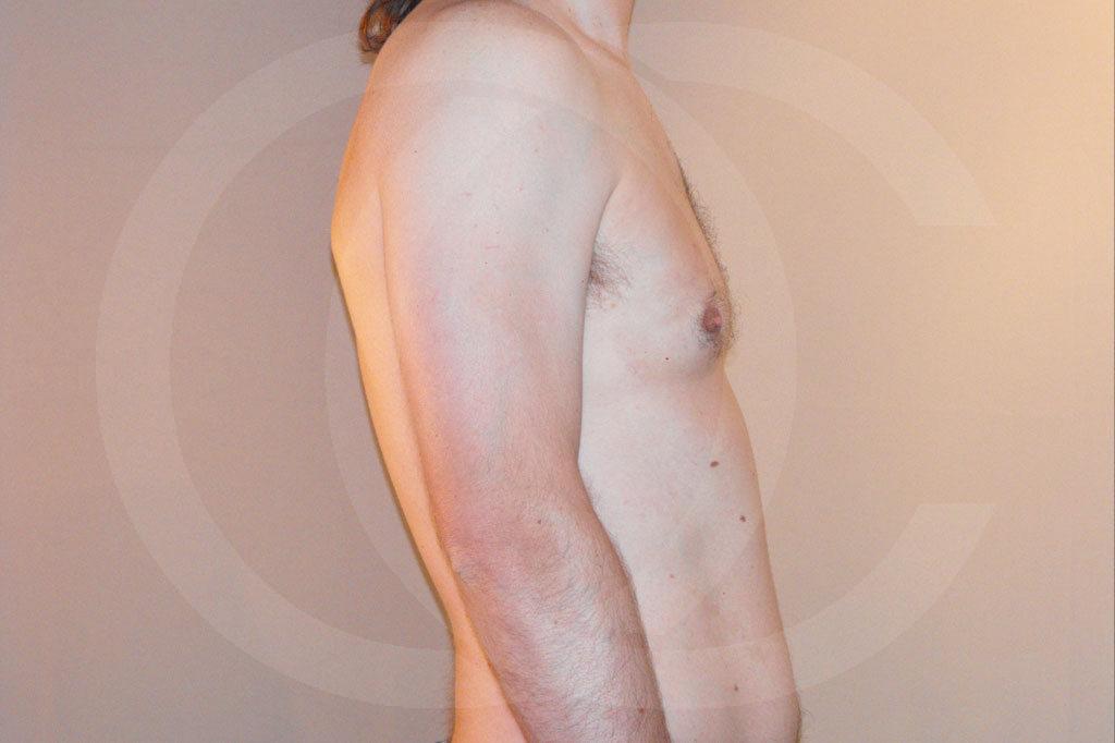 Ginecomastia Madrid foto cirugía reducción de senos después 06