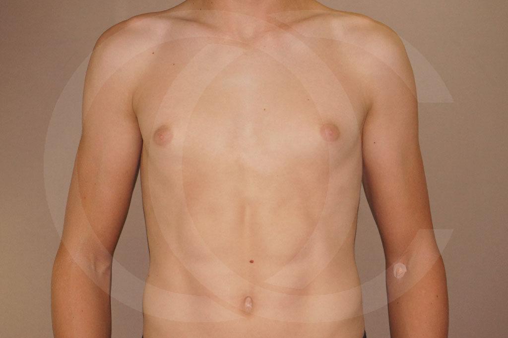 Ginecomastia Madrid foto Reducción de pecho en hombres antes 01