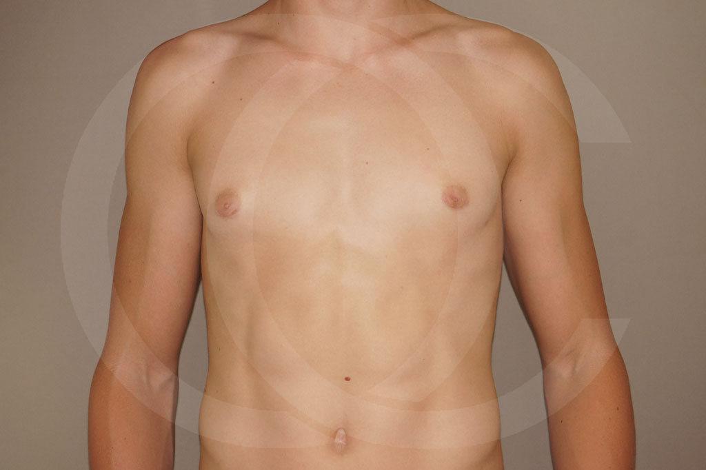 Ginecomastia Madrid foto Reducción de pecho en hombres después 02