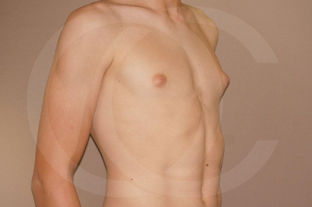 Ginecomastia Madrid foto Reducción de pecho en hombres antes 03
