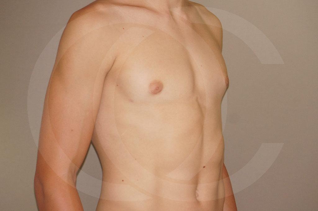 Ginecomastia Madrid foto Reducción de pecho en hombres después 04