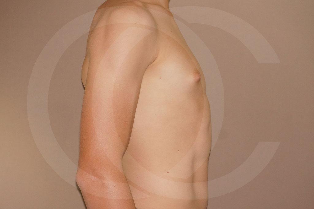Ginecomastia Madrid foto Reducción de pecho en hombres antes 05