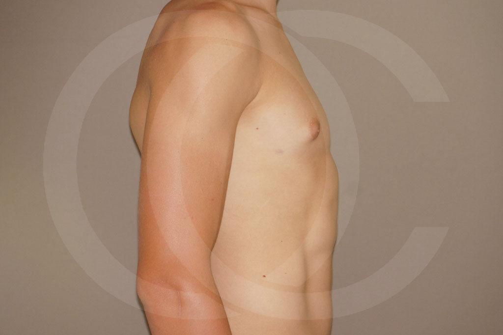 Ginecomastia Madrid foto Reducción de pecho en hombres después 06