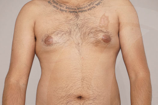 Ginecomastia Madrid foto Reducción mamaria masculina antes 01