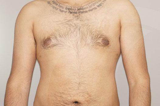 Ginecomastia Madrid foto Reducción mamaria masculina después 02