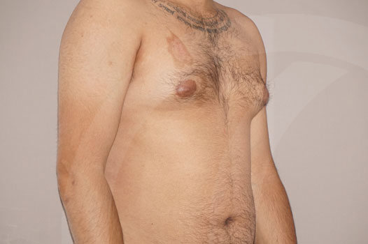 Ginecomastia Madrid foto Reducción mamaria masculina antes 03