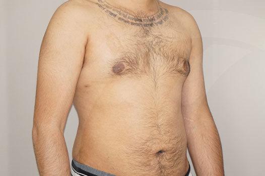 Ginecomastia Madrid foto Reducción mamaria masculina después 04