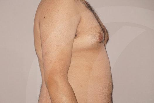 Ginecomastia Madrid foto Reducción mamaria masculina antes 05