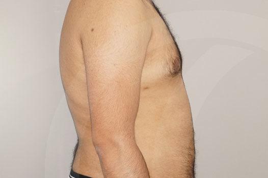 Ginecomastia Madrid foto Reducción mamaria masculina después 06
