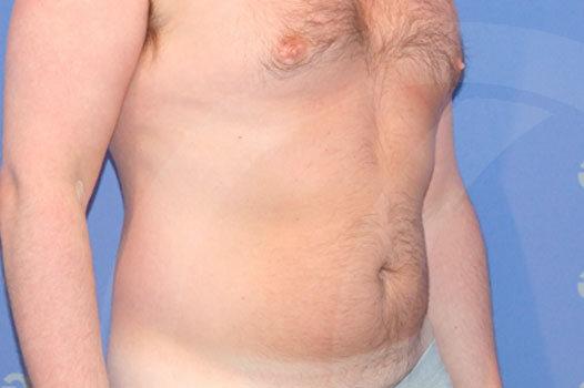 Ginecomastia Madrid foto Cirugía estética para hombres antes 03
