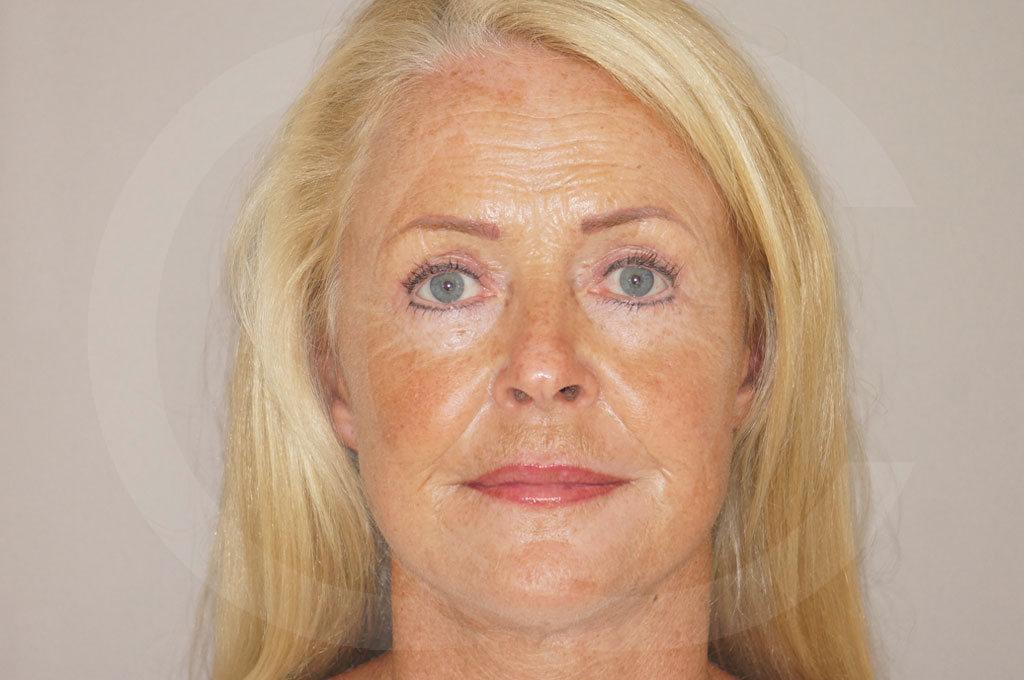 Lifting facial Madrid foto cirugía de lifting de cara y cuello después 02