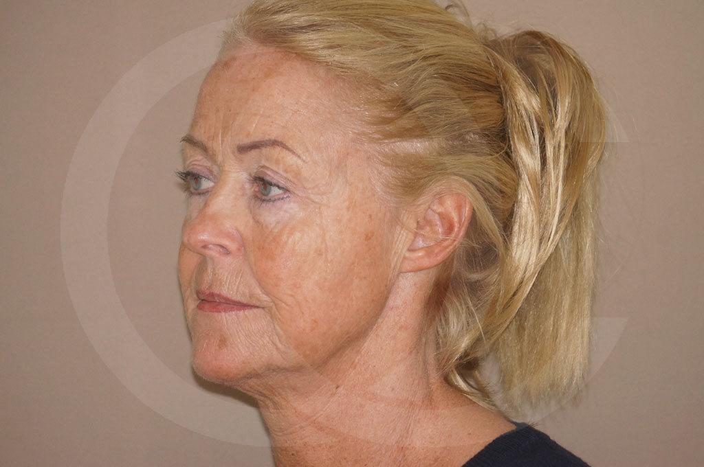 Lifting facial Madrid foto cirugía de lifting de cara y cuello antes 03