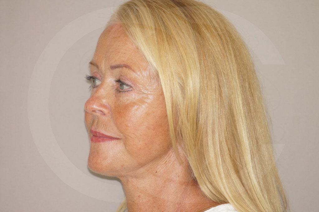 Lifting facial Madrid foto cirugía de lifting de cara y cuello después 04