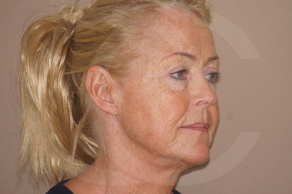 Lifting facial Madrid foto cirugía de lifting de cara y cuello antes 05