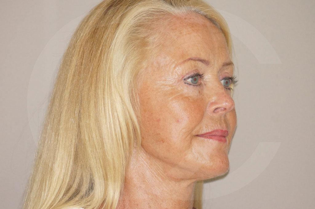 Lifting facial Madrid foto cirugía de lifting de cara y cuello después 06
