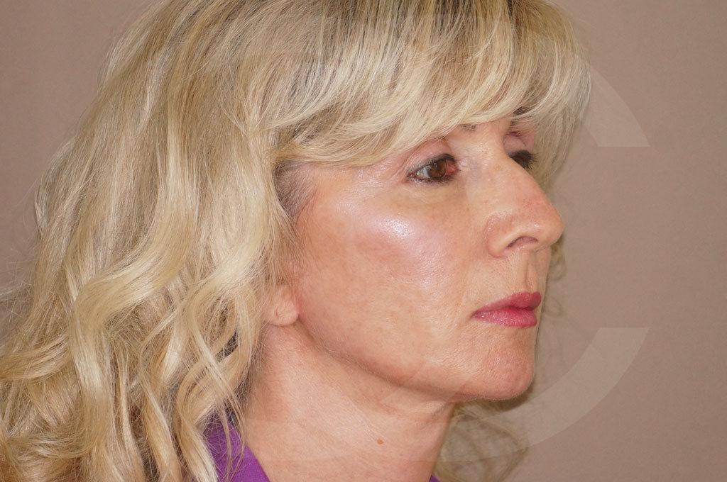 Lipofilling facial Madrid foto injertos de grasa después 04