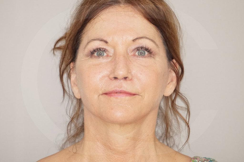 Lipofilling facial Madrid foto Trasplante de Grasa después 02