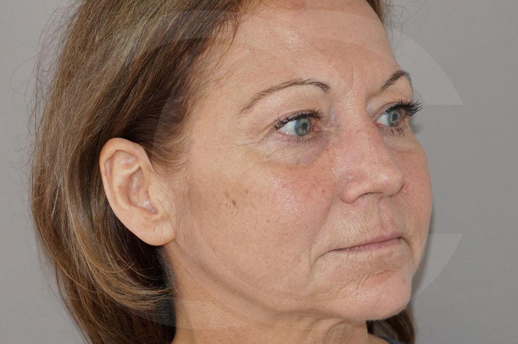 Lipofilling facial Madrid foto Trasplante de Grasa antes 03