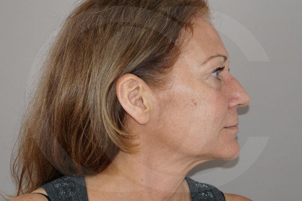 Lipofilling facial Madrid foto Trasplante de Grasa antes 05