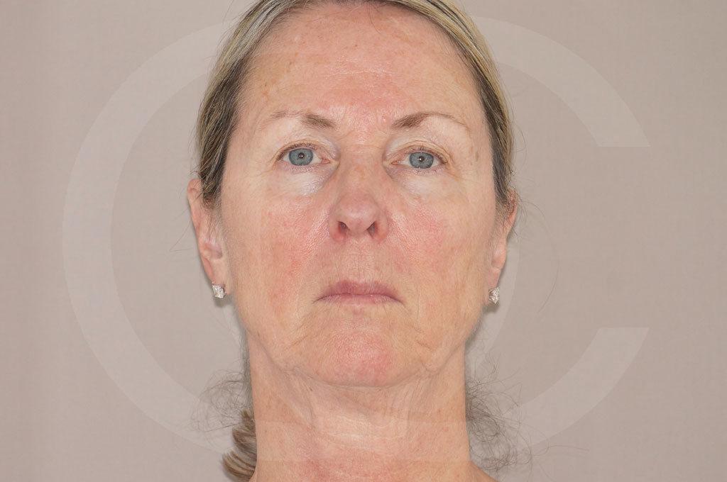 Lipofilling facial Madrid foto Rejuvenecimiento facial antes 01