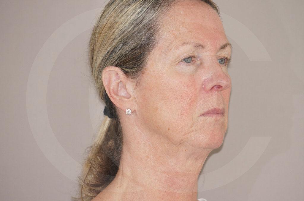 Lipofilling facial Madrid foto Rejuvenecimiento facial antes 03