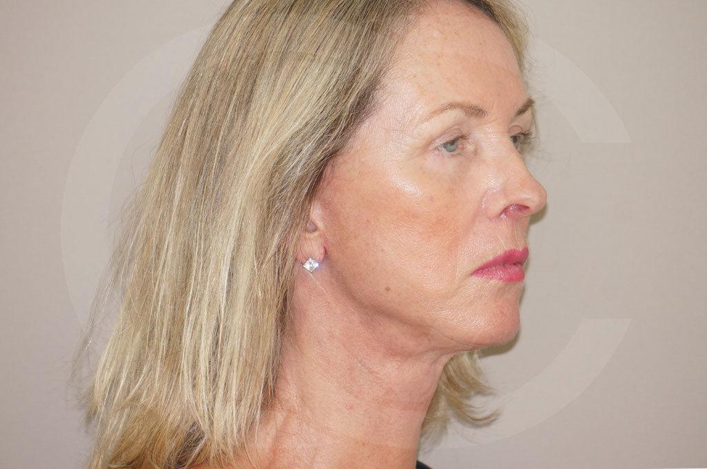 Lipofilling facial Madrid foto Rejuvenecimiento facial después 04